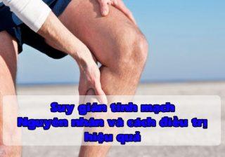Suy giãn tĩnh mạch – Nguyên nhân và cách trị dứt điểm